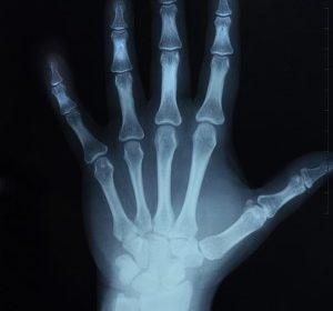 """""""Giornata mondiale osteoporosi"""""""